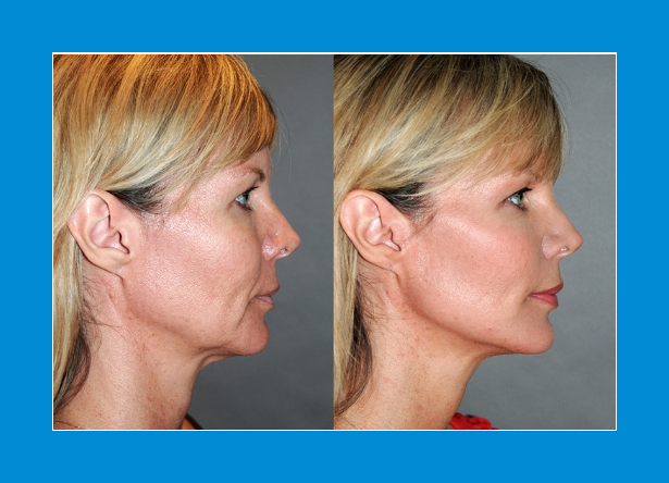 Before & after photos 90 days on from High intensity focused ultrasound Hifu showing jaw slackness lifted, nasio-labial lines lifted & crows feet reduction