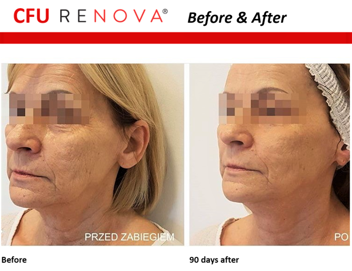 Before & after of facial skin lifting 90 days on from HIFU.
