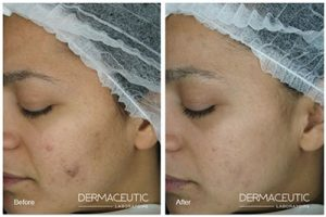 Cosmo Chemical peels