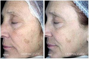 Chemical peels for women